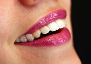 Prophylaxe und professionelle Zahnreinigung